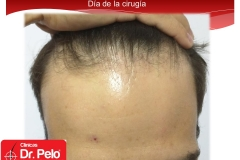 injerto-capilar-fue (1)