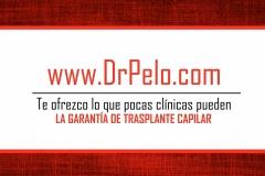 injerto-capilar-fue (12)