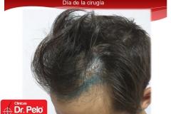 injerto-capilar-fue (2)