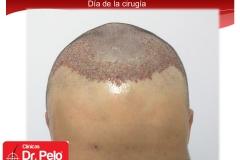 injerto-capilar-fue (4)