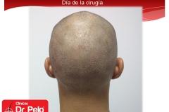 injerto-capilar-fue (5)