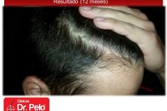 injerto-capilar-fue (8)