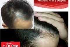 injerto-capilar-fue (9)