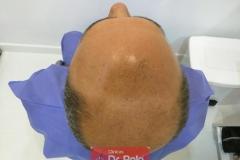 trasplante-injerto-capilar-tecnica-fue (4)