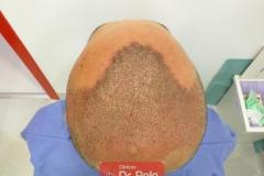 trasplante-injerto-capilar-tecnica-fue (8)