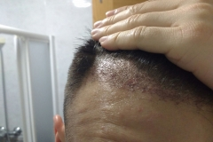 30 dias injerto capilar