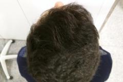 injerto-capilar-fue (17)