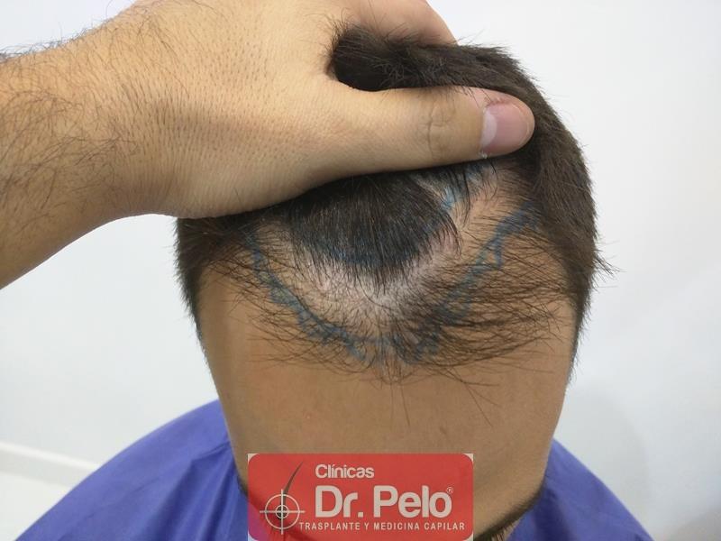 [Imagen: injerto-capilar-fue-clinica-dr-pelo-1.jpg]