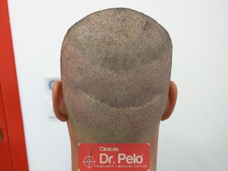 [Imagen: injerto-capilar-fue-clinica-dr-pelo-10.jpg]