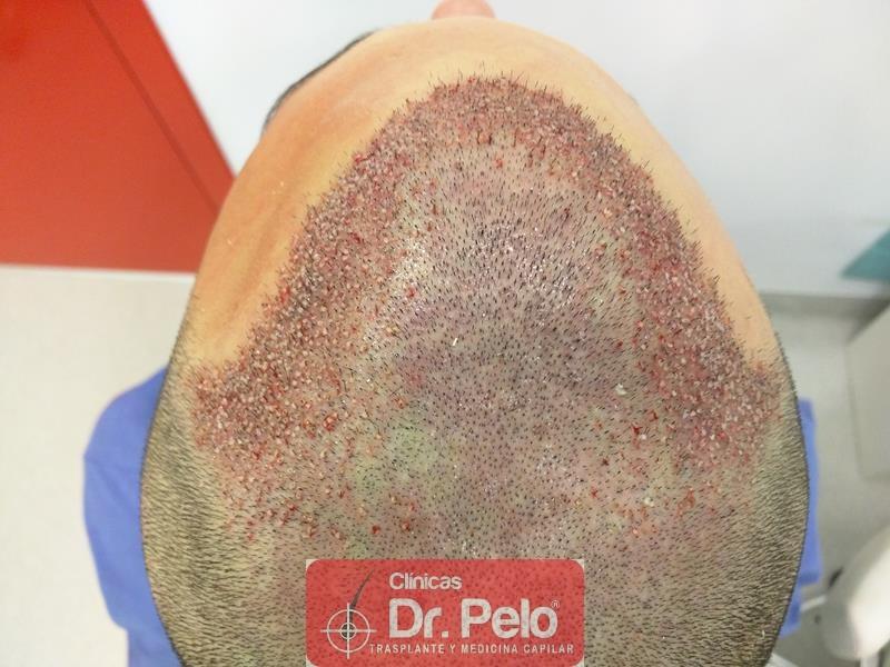 [Imagen: injerto-capilar-fue-clinica-dr-pelo-11.jpg]
