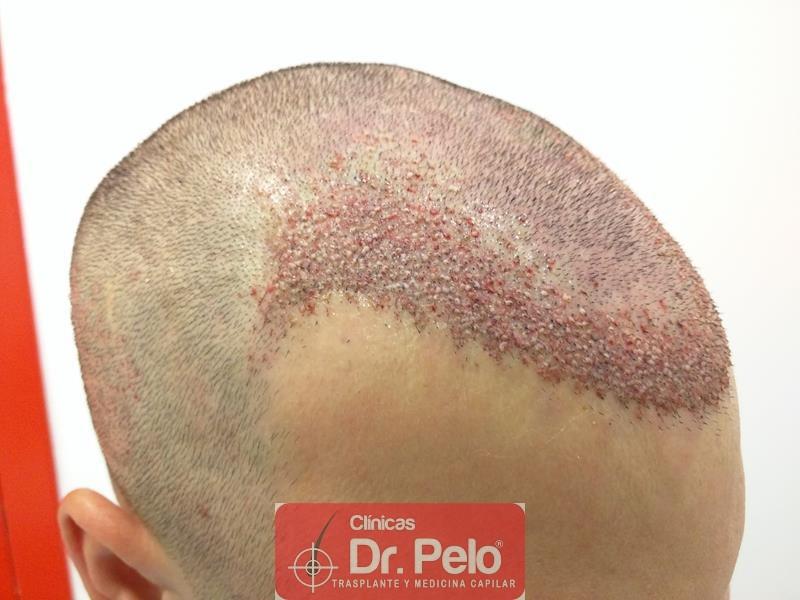 [Imagen: injerto-capilar-fue-clinica-dr-pelo-12.jpg]