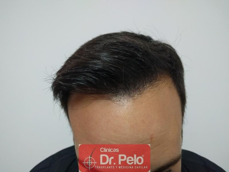 [Imagen: injerto-capilar-fue-clinica-dr-pelo-13.jpg]