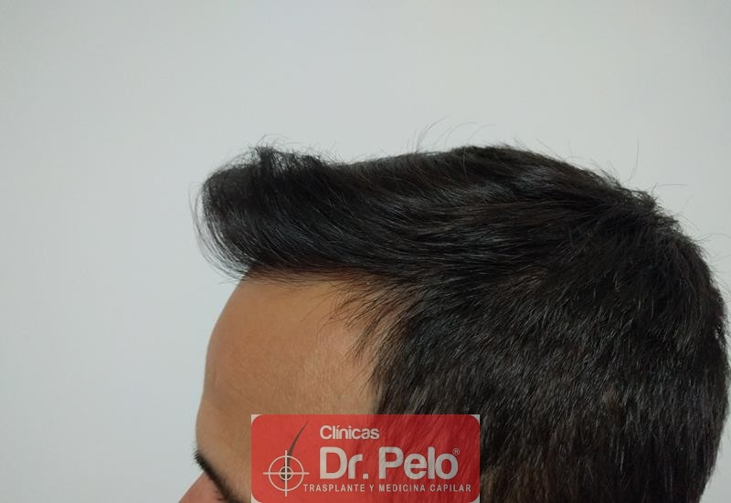 [Imagen: injerto-capilar-fue-clinica-dr-pelo-14.jpg]
