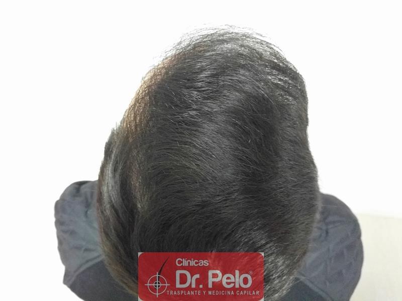 [Imagen: injerto-capilar-fue-clinica-dr-pelo-15.jpg]