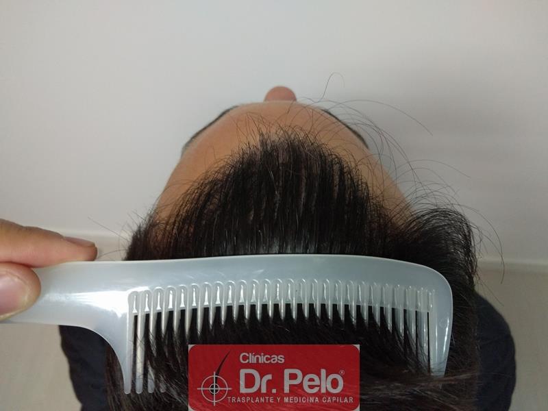 [Imagen: injerto-capilar-fue-clinica-dr-pelo-16.jpg]