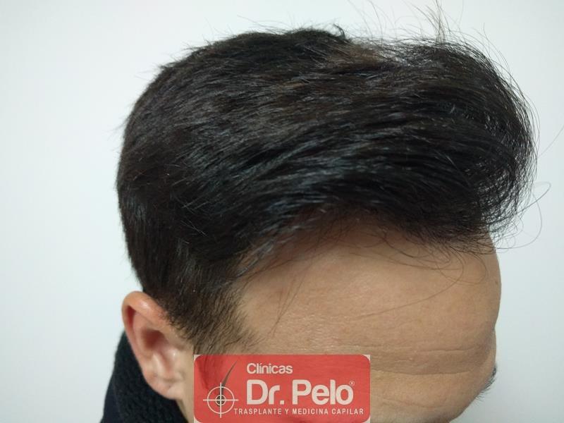 [Imagen: injerto-capilar-fue-clinica-dr-pelo-17.jpg]