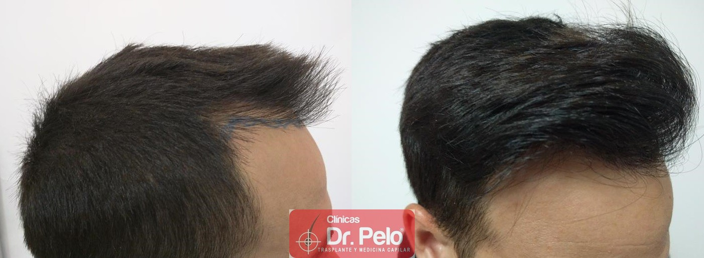 [Imagen: injerto-capilar-fue-clinica-dr-pelo-19-1.jpg]