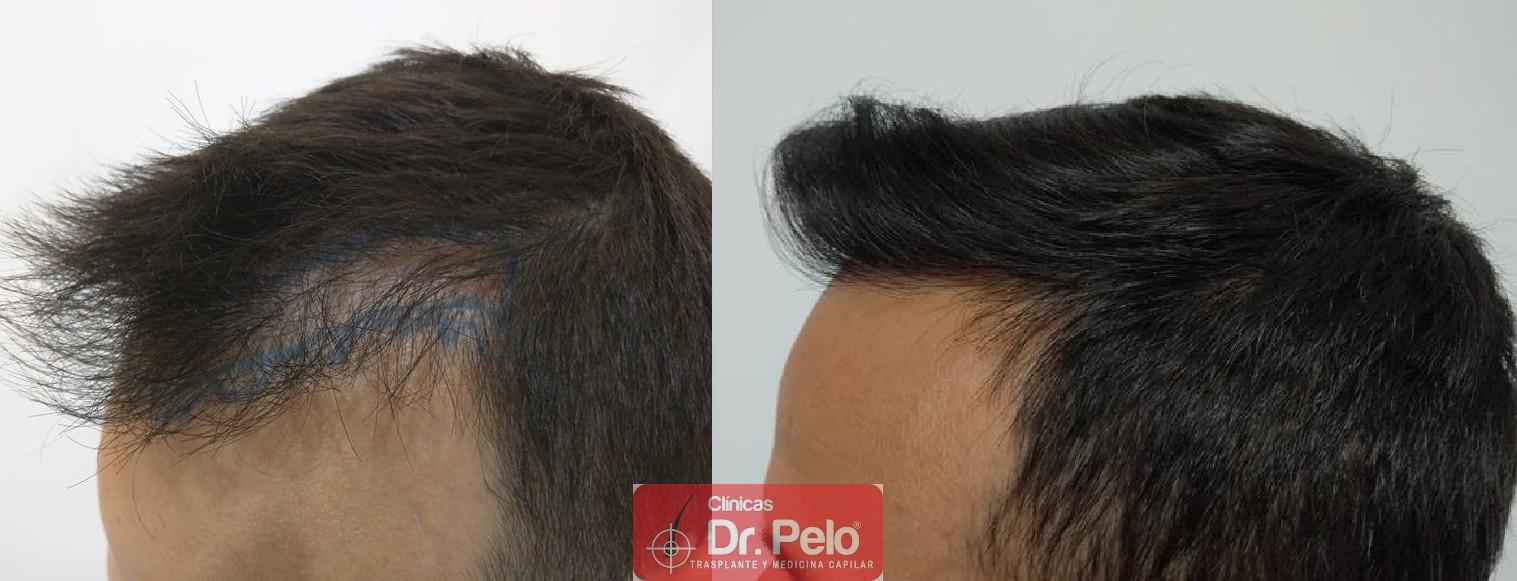 [Imagen: injerto-capilar-fue-clinica-dr-pelo-19.jpg]