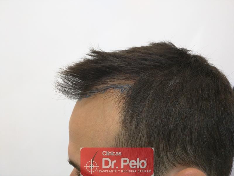 [Imagen: injerto-capilar-fue-clinica-dr-pelo-2.jpg]