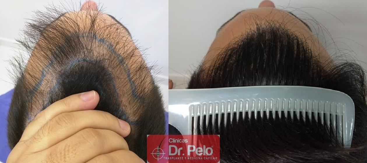 [Imagen: injerto-capilar-fue-clinica-dr-pelo-20.jpg]