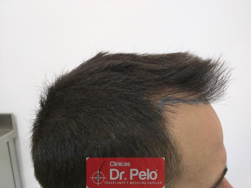 [Imagen: injerto-capilar-fue-clinica-dr-pelo-5.jpg]