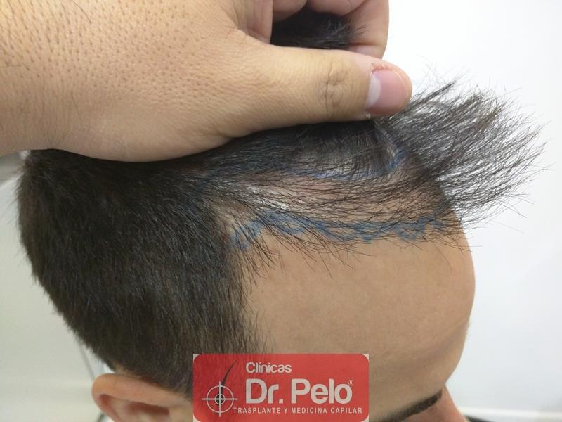 [Imagen: injerto-capilar-fue-clinica-dr-pelo-6.jpg]