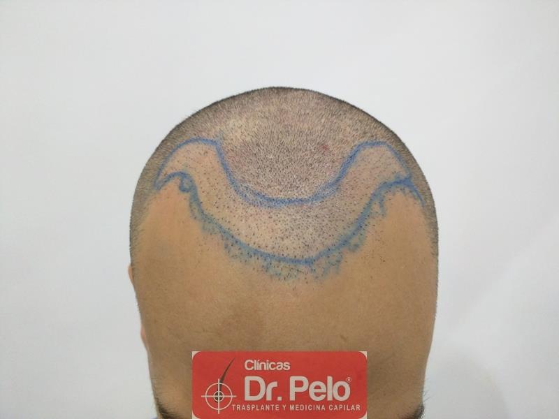 [Imagen: injerto-capilar-fue-clinica-dr-pelo-7.jpg]
