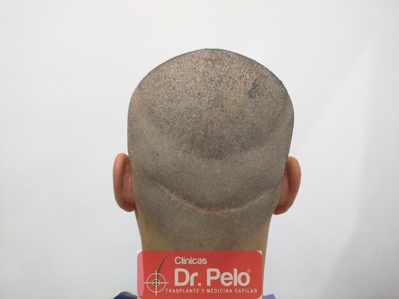 [Imagen: injerto-capilar-fue-clinica-dr-pelo-8.jpg]