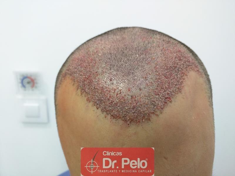 [Imagen: injerto-capilar-fue-clinica-dr-pelo-9.jpg]