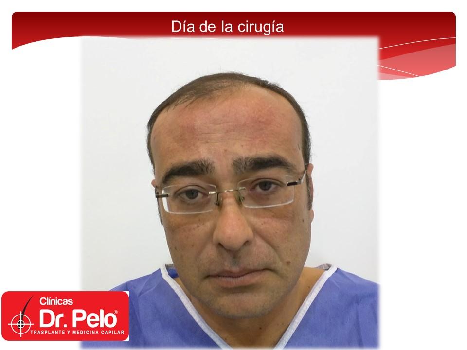 [Imagen: exclente-injerto-capilar-fue-1.JPG]