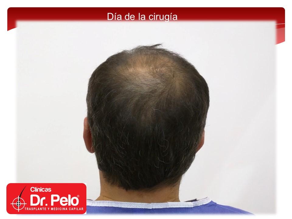 [Imagen: exclente-injerto-capilar-fue-10.JPG]