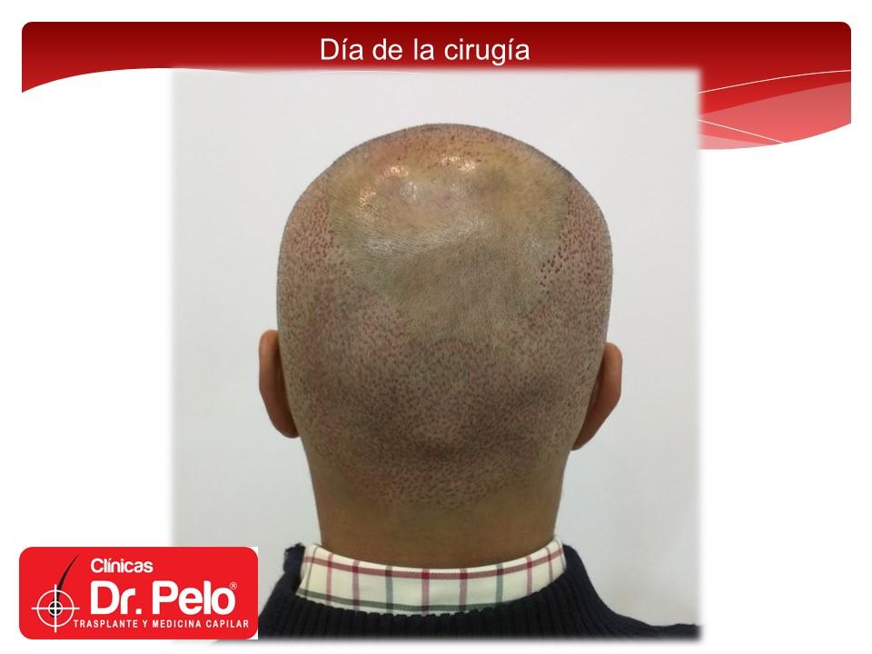 [Imagen: exclente-injerto-capilar-fue-12.JPG]