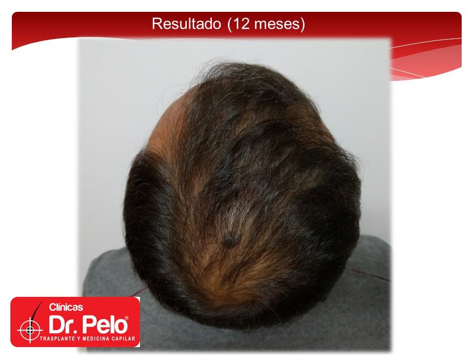[Imagen: exclente-injerto-capilar-fue-14.JPG]