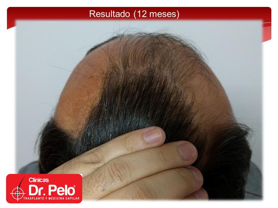 [Imagen: exclente-injerto-capilar-fue-15.JPG]