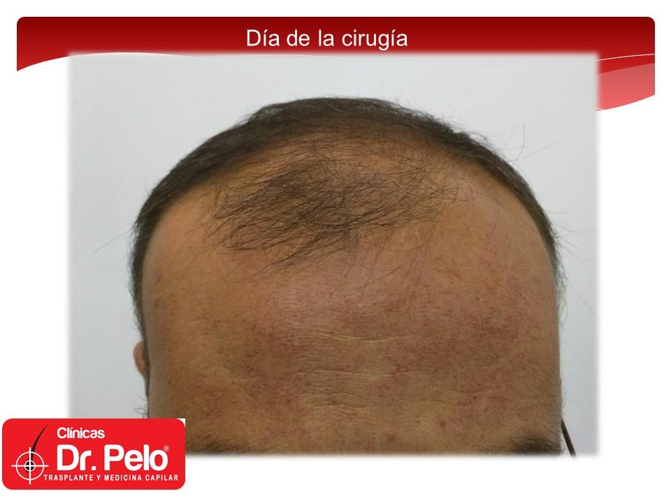 [Imagen: exclente-injerto-capilar-fue-2.JPG]