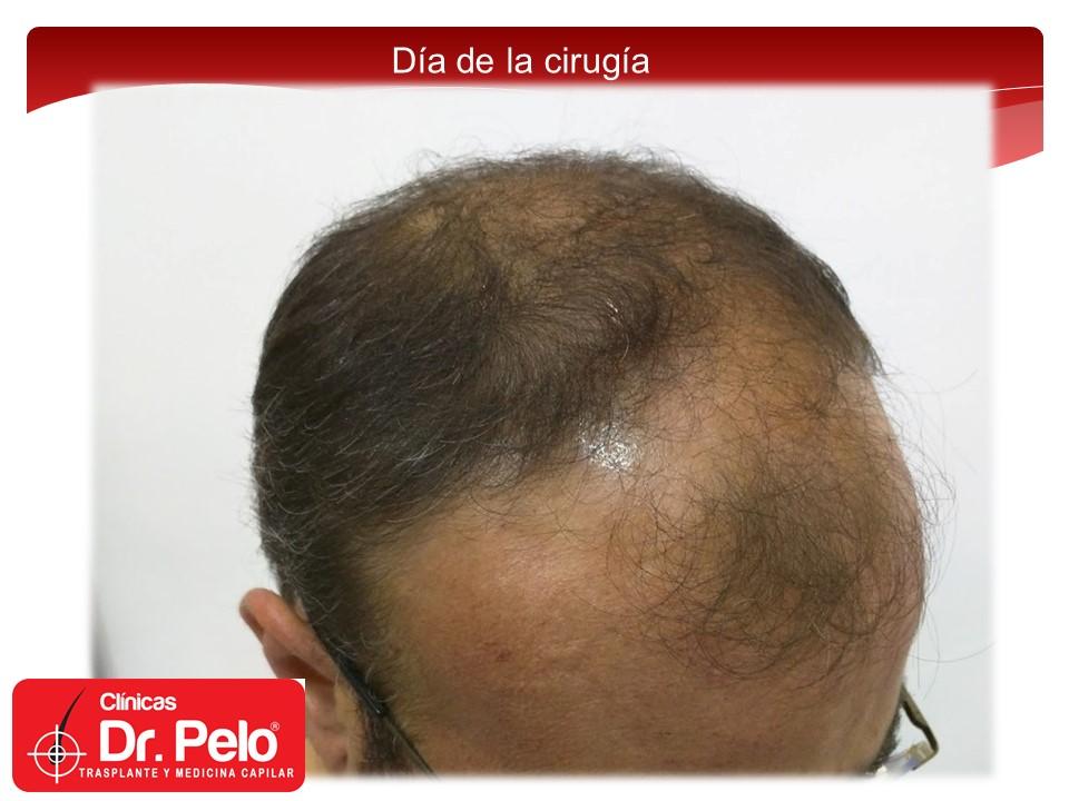 [Imagen: exclente-injerto-capilar-fue-5.JPG]