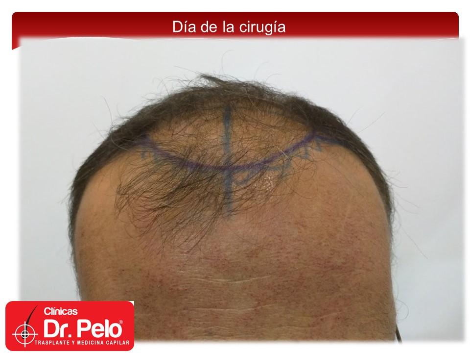 [Imagen: exclente-injerto-capilar-fue-6.JPG]