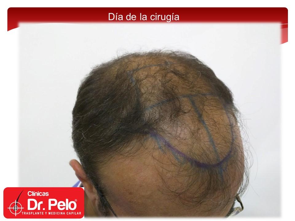 [Imagen: exclente-injerto-capilar-fue-8.JPG]