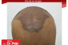 exclente injerto capilar fue (11)