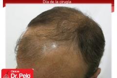 exclente injerto capilar fue (4)