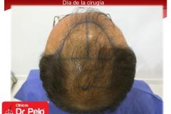 exclente injerto capilar fue (9)