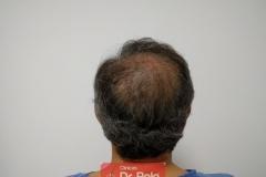 trasplante-injerto-capilar-tecnica-fue (15)