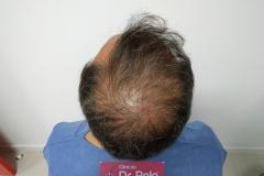 trasplante-injerto-capilar-tecnica-fue (17)