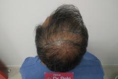 trasplante-injerto-capilar-tecnica-fue (22)