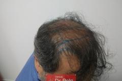 trasplante-injerto-capilar-tecnica-fue (24)