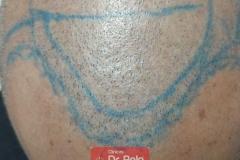 trasplante-injerto-capilar-tecnica-fue (26)