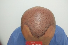 trasplante-injerto-capilar-tecnica-fue (29)
