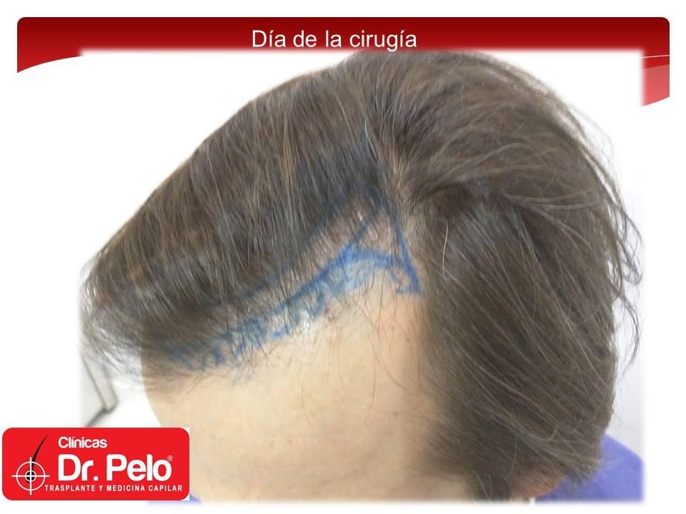 [Imagen: injerto-capilar-tecnica-fue-dr-pelo-afon...ior-01.jpg]