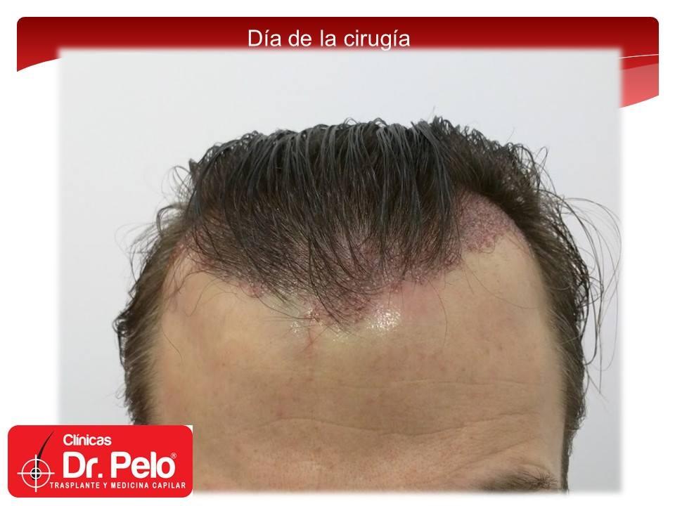 [Imagen: injerto-capilar-tecnica-fue-dr-pelo-afon...ior-03.jpg]