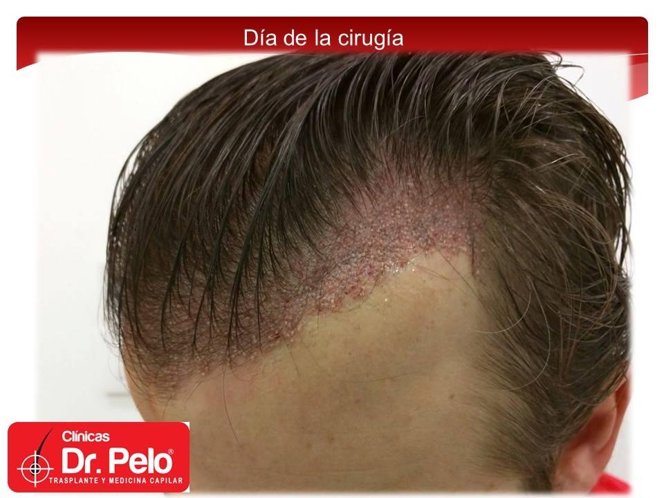 [Imagen: injerto-capilar-tecnica-fue-dr-pelo-afon...ior-04.jpg]